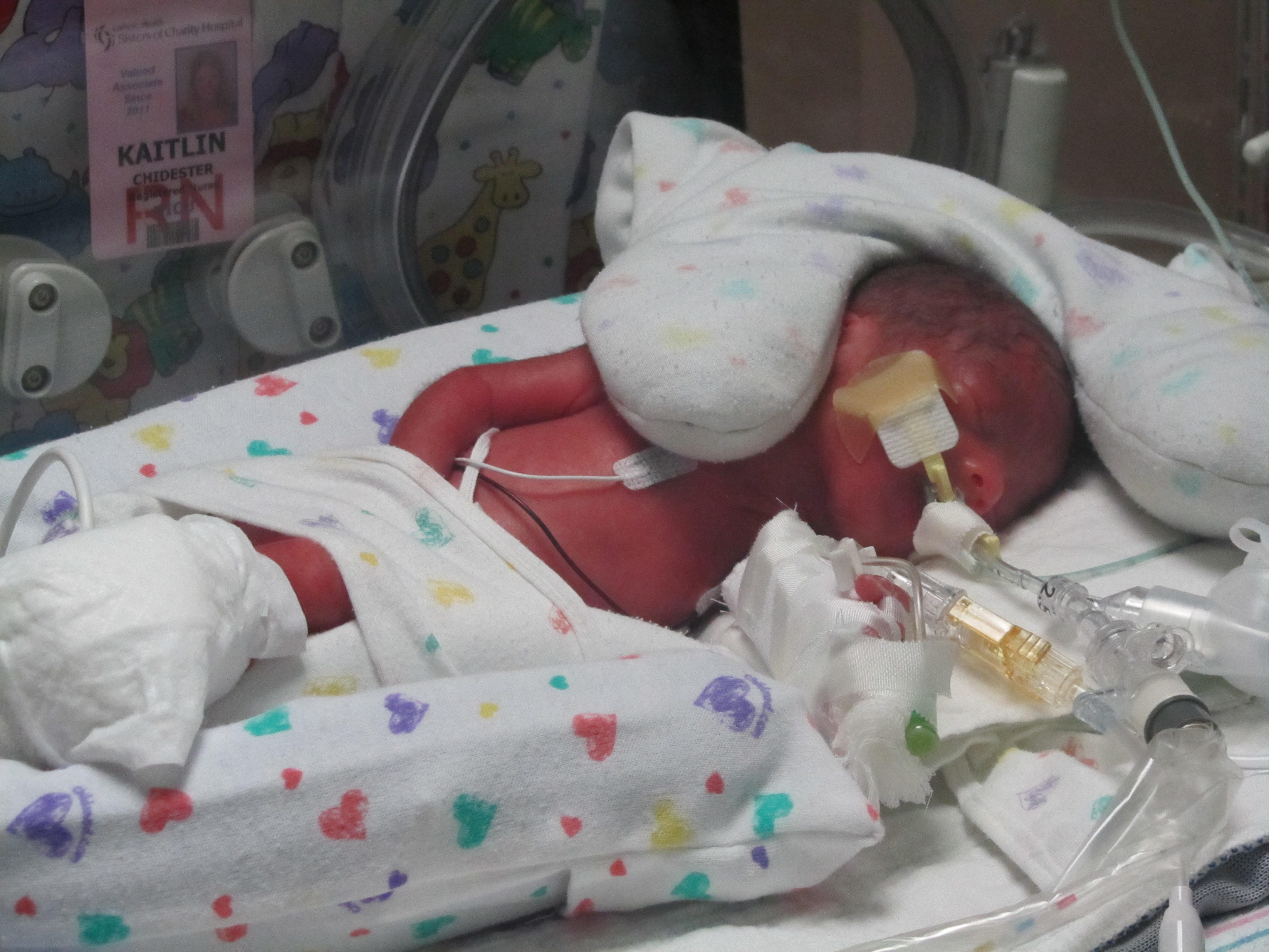 infant breathing machine